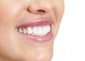Bělení zubů pro dokonalý úsměv